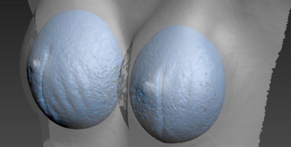 3D грудь