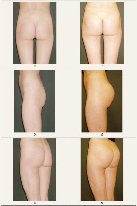 Особенности подбора эндопротезов при увеличивающей пластики ягодичной области