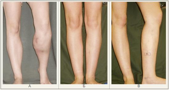 Опыт хирургического лечения осложнений после инъекционной контурной пластики мягких тканей нижних конечностей с помощью полиакриламидных гелей