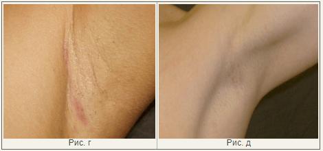 Рубцы после маммопластики: быть или не быть?