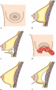 Подтяжка груди с эндопротезированием