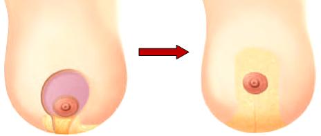 Гипертрофия молочных желез