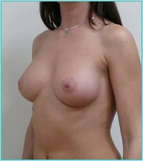 Увеличение груди силиконовыми импоантами