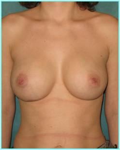 Осложнения после пластики груди
