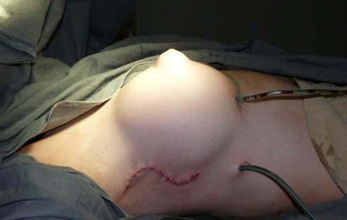 Синдром Поланда: выбор хирургической тактики