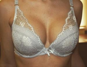 Увеличение груди силиконовыми имплантатами