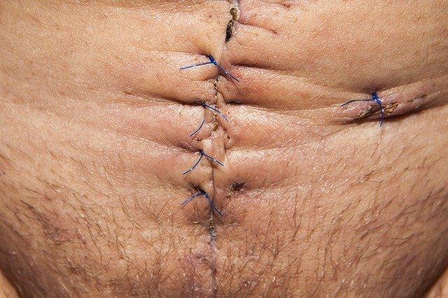 Шрам после операции