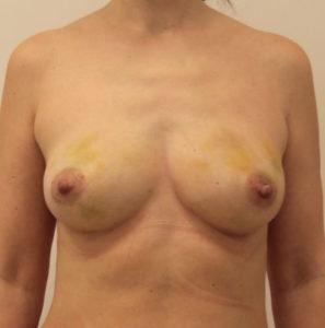 Липофилинг груди после операции