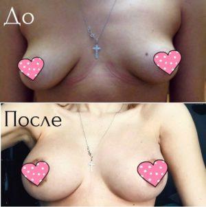 Увеличение груди силиконовыми имплантами фото