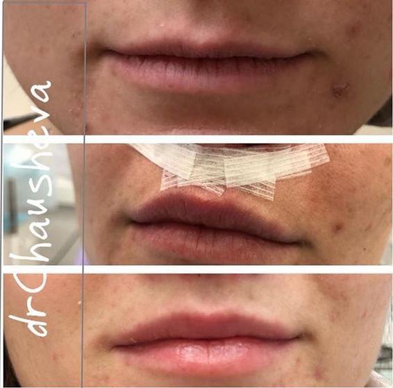 Операция булхорн (увеличение губ) до и после