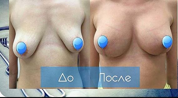 Увеличение груди силиконовыми имплантами, хирург Софья Чаушева