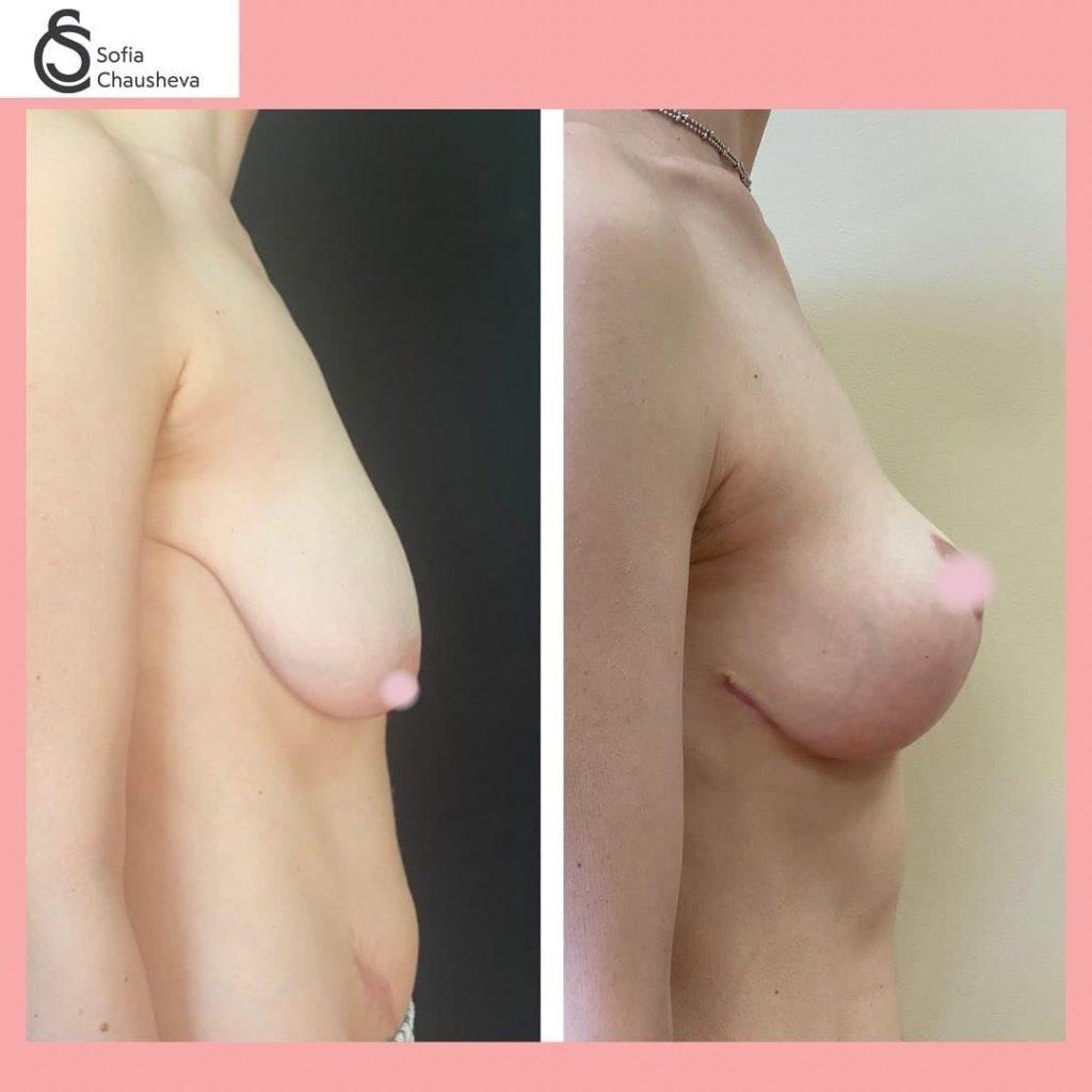 Т-образная подтяжка груди - фото до и после - вид сбоку