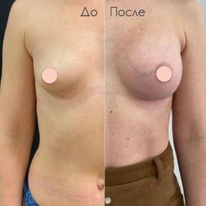 Результат после увеличения груди