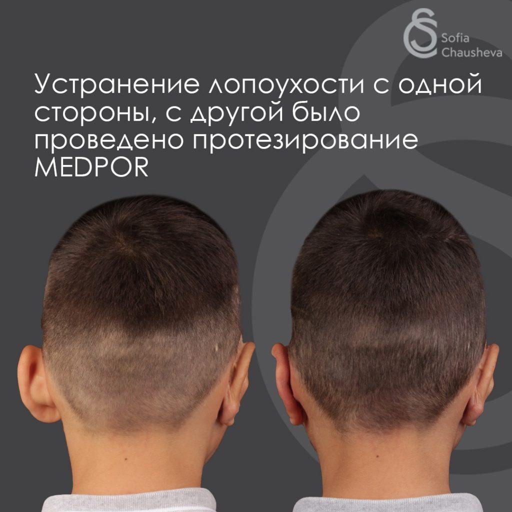 Фото до и после отопластики у детей - вид сзади