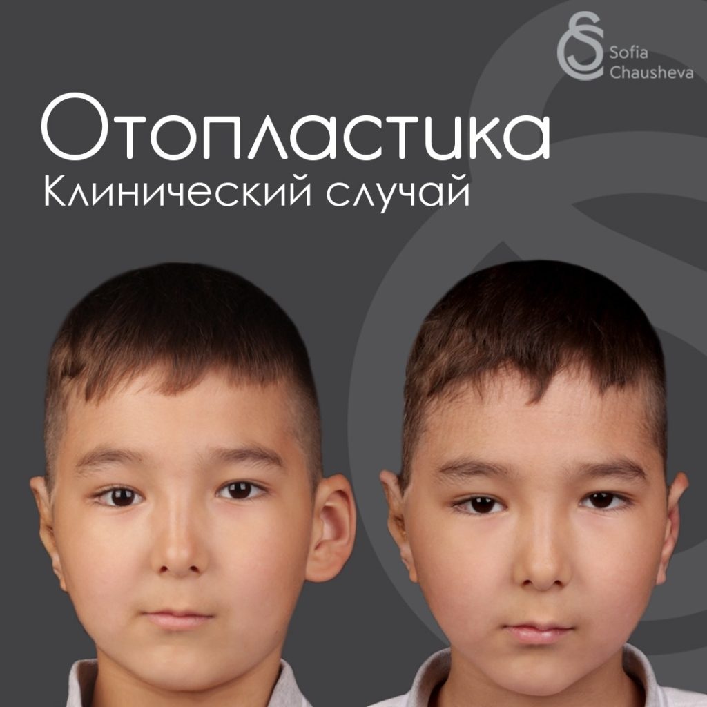 Фото до и после отопластики у детей