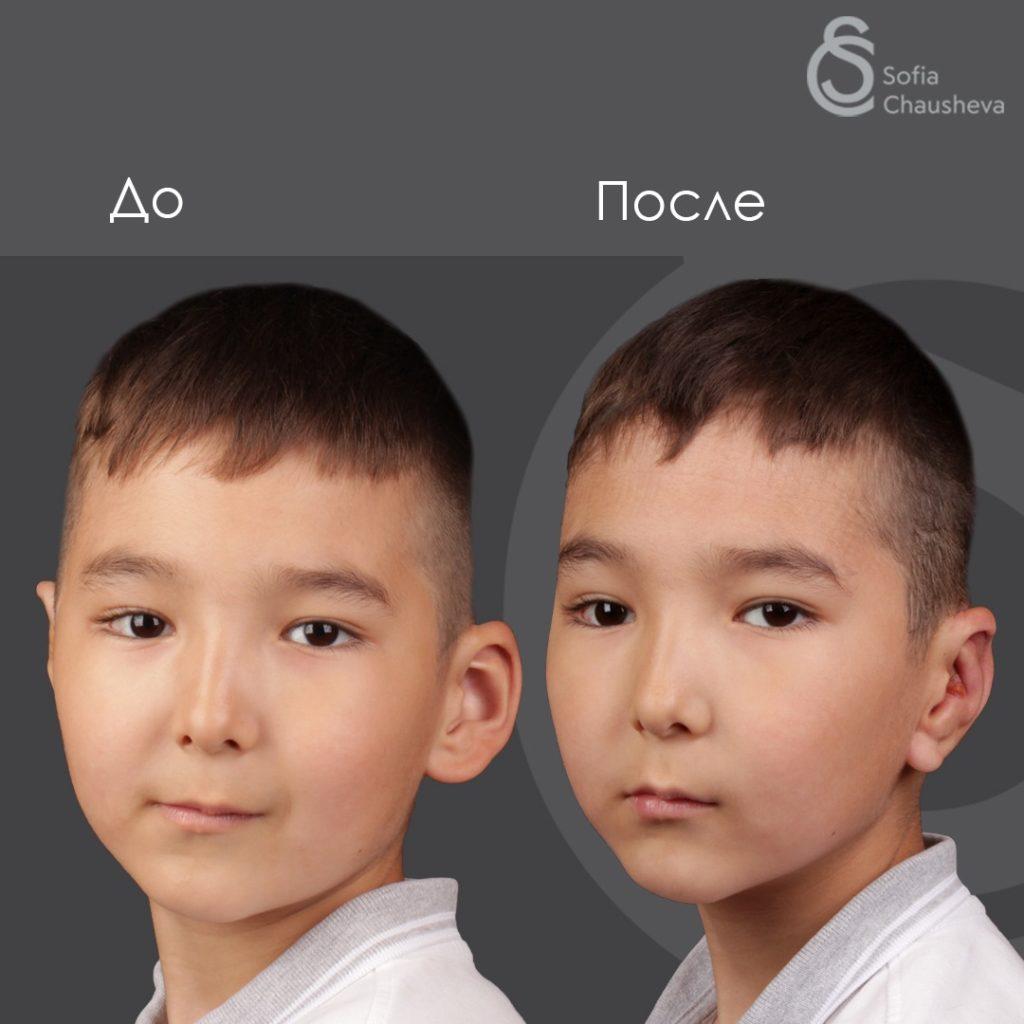 Фото до и после отопластики у детей - полупрофиль