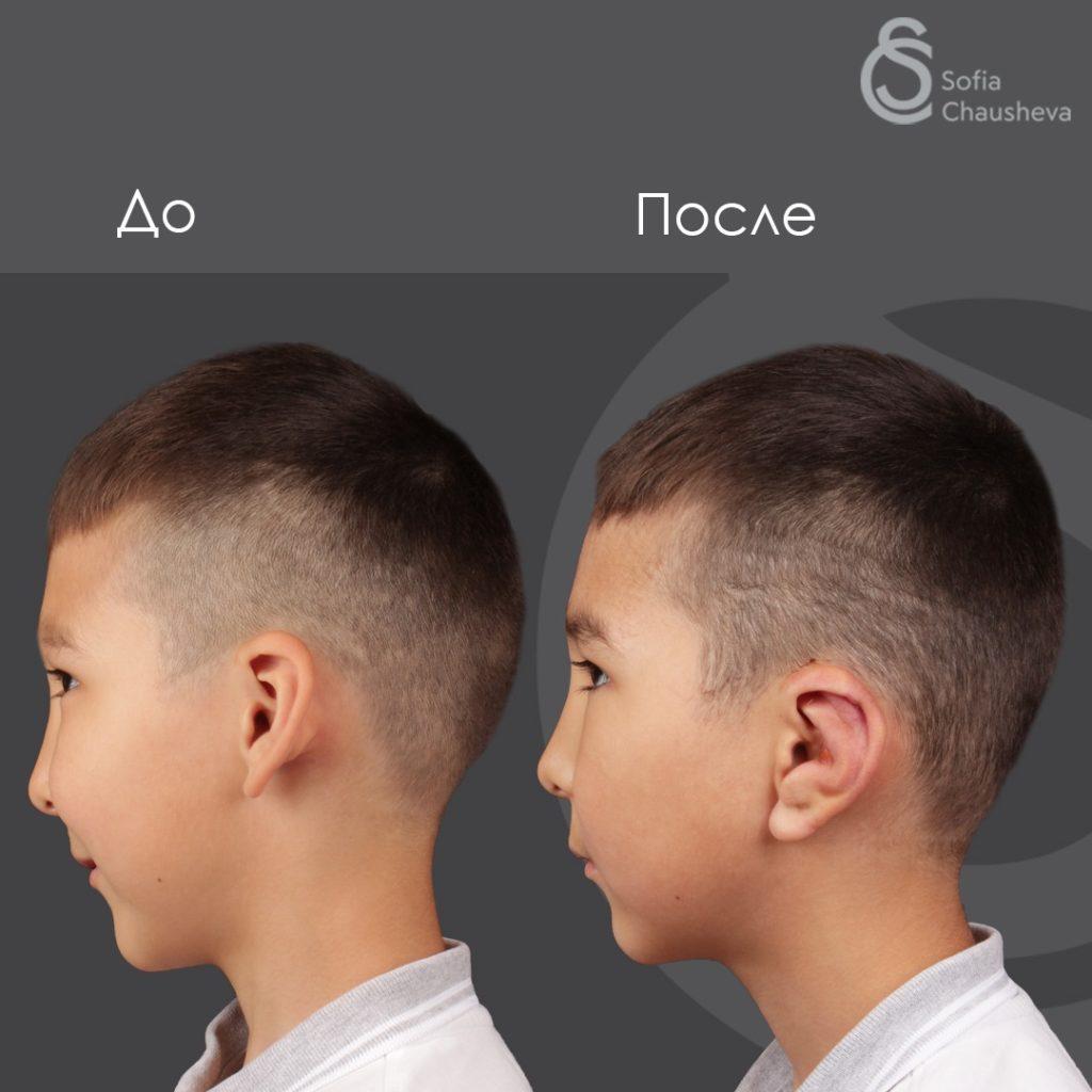 Фото до и после отопластики у детей - профиль